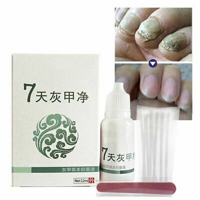 Nails Fungus Treatment Anti Fungal Nail Infection Essence Removal Fungus Cure