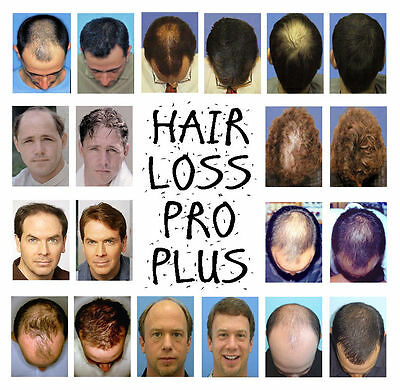 300ml Hair Loss Pro Plus stimulates hair growth directly at the roots, FREE P&P