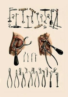 Antique Medical Dental Examples Of Tooth Keys &  Extraction Tools  A3 Re Print