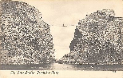 Northern Ireland Postcard Rope Bridge Carrick A Rede Giants Causeway K0 010