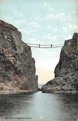 Northern Ireland Postcard Rope Bridge Carrick A Rede Giants Causeway K0 009