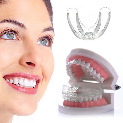 Adults Health Beauty Care Straight Teeth System Orthodontic Anti-Molar Retainer
