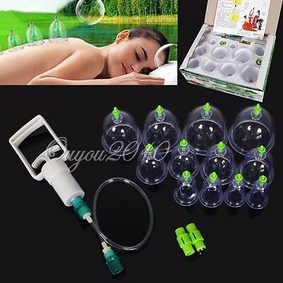 12 Cups Chinese Medical Vacuum Cupping Set Suction Acupuncture Therapy Massage