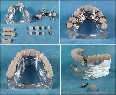 Dental Demonstration Model Triple Play, Fixed, Removable, Implant Abutment 3 in1