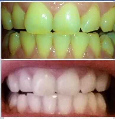 Whitening Toothpaste Non Peroxide Dental Oral Care Tooth Paste New Authentic