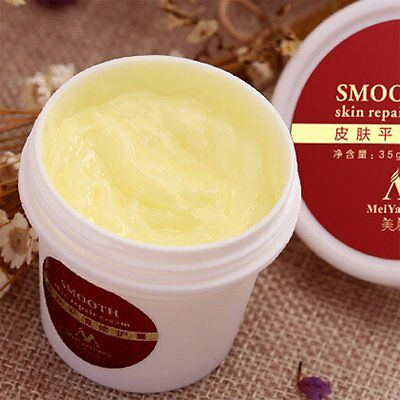 Smooth Skin Cream For Stretch Marks Scar Removal for Maternity Skin Repair HY