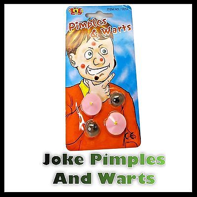 Warts And Pimples Fancy Dress Accessory Joke Stick On Funny 4Pk Halloween Witch