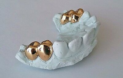 ANY 2 or 4 PC- 10K, 14K, or 18K Gold Custom Made Grill Grillz