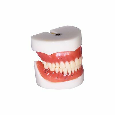 Dental Demonstration Teeth Educational Model Denture Implants #3004