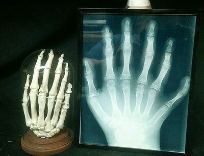 Articulated Six Finger Hand Display,sideshow Gaff,oddity,deformed,freak,odd,