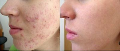 STOP ACNE,Eczema,Rosacea face cream with Salicylic Acid,Spots Removal Blemishes