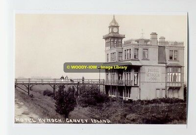 rp5771 - Hotel Kynoch , Canvey Island , Essex - photo 6x4