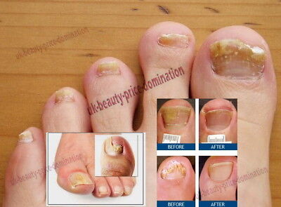Strongest Fungal LotionTreatment Blackened Discoloured Toe Nail Fungus Infection