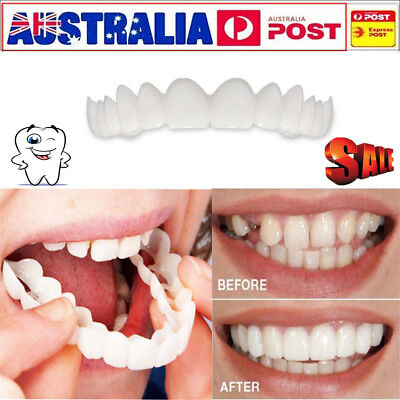 AU Snap On Teeth Cosmetic Secure Smile Instant Natural Upper Veneer Dental False