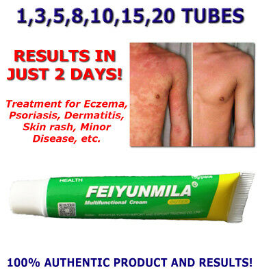 Eczema Psoriasis Dermatitis Rosacea Vitiligo Skin Rash Minor Disease Cream