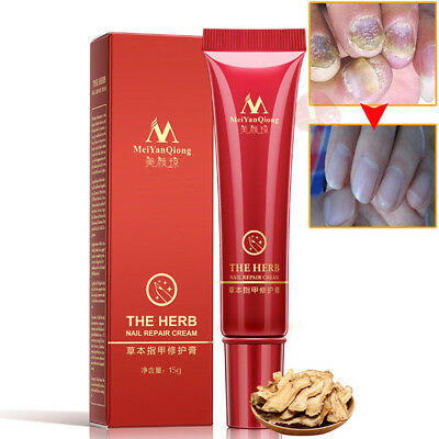 Nail Foot Protector Skin Care Cream Fungus Treatment Herb Nails Repair Cream THE