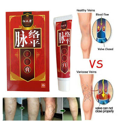 Varicose Veins Treatment Leg Acid Bilges Itching Bad Vasculitis Cream Comb 30g