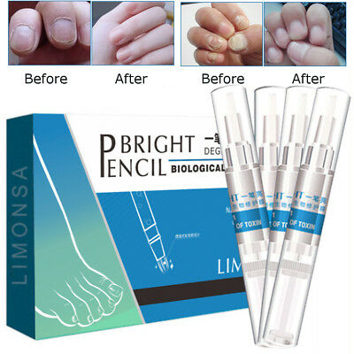 4X Solution Anti Fongique Infection Traitement Fungus Soins Ongle Pieds Nail Art