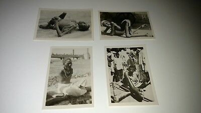 Medical Antique Vintage Abnormality Photo QTY 4 Original photos. Rare find!