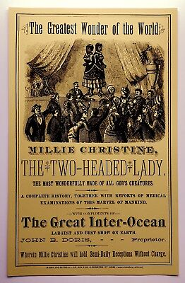 MILLIE-CHRISTINE Greatest Wonder of the World Siamese Twin Sideshow Freak POSTER