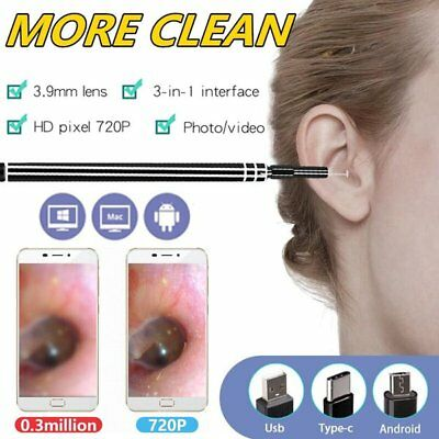 Health Care Tools Ears Pick Wax Remover Cleaner scope Endoscope Windows PC USB G