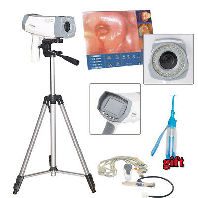 Digital 800000 pixels Electronic Colposcope SONY Camera DSP dynamic Auto focus