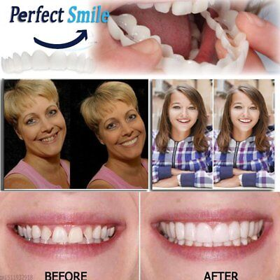 Sorriso perfetto Instant DENTI Cosmetici faccette Snap-on smile Comfort Covers@#