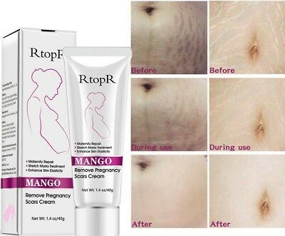 Mango Remove Pregnancy Scars Acne Cream Stretch Marks Treatment Maternity Repair