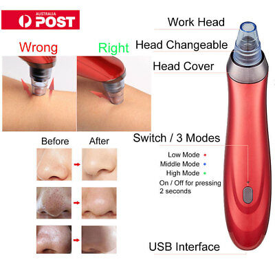 AU Electric Face Pore Cleanser Vacuum Suction Blackhead Eliminator Acne Remover