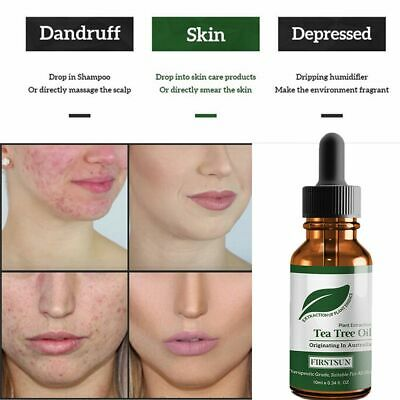 100% Natural Tea Tree Essential Extract Acne Removal Cool Scars Oil Anti-wrinkle