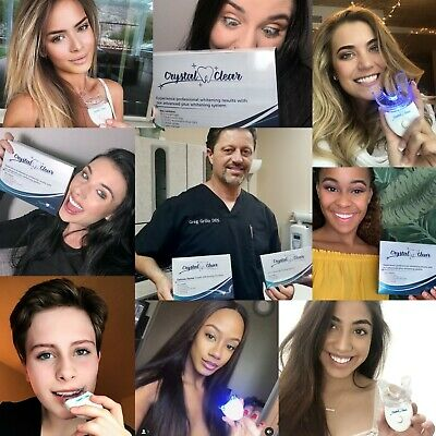 Teeth Whitening Kit by Crystal Clear Teeth Whitening, HiSmile & Snow comparable