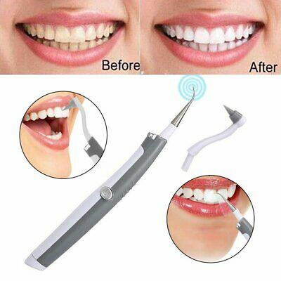 Electric Sonic Pic Tooth Beauty Cleaner Plaque Remover Vibrating Teeth Tool !R