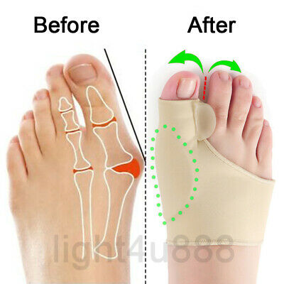 2 x Fabric Gel Big Toe Bunion Pad Protector Hallux Valgus Corrector Straightener