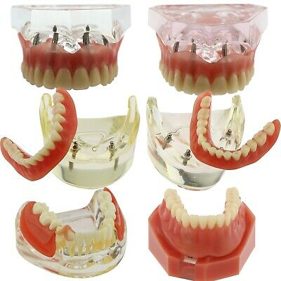 Dental Implants Typodont Model Restoration Overdenture Inferior Study Demo Jaw