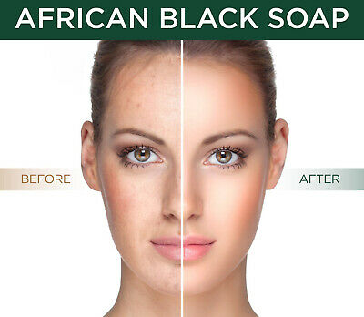 African Black Soap, All Natural Acne, Scar, Blemish, Blackhead Treatment & Cure