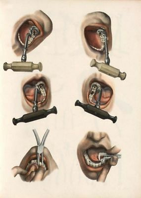 Antique Medical Dental Examples Of Tooth Key Extraction  A3 Re Print