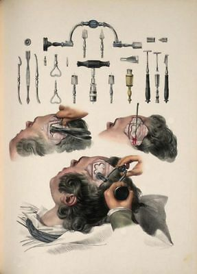 Antique Medical Surgical Trephining Tools A3 Re Print