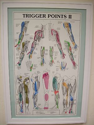 Massage/Chiropractic Trigger Point Chart Set White Framed