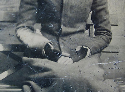 WEIRD  Tintype Photo  - Woman with DEFORMED Arm- Cast?  1880s medical disability
