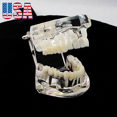 USA Ship! 1pc Dental Implant Disease Teeth Model with Restoration & Bridge Tooth