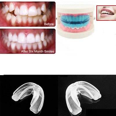 Teens Adults Health Care Straight Teeth Orthodontic Anti-Molar Retainer w/ Box