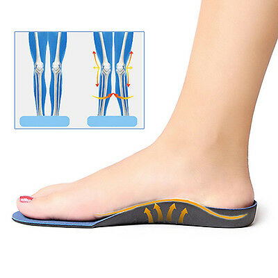 High Arch Supports Flatfoot Orthotics Cubitus Varus Feet Pads Insoles Ornate