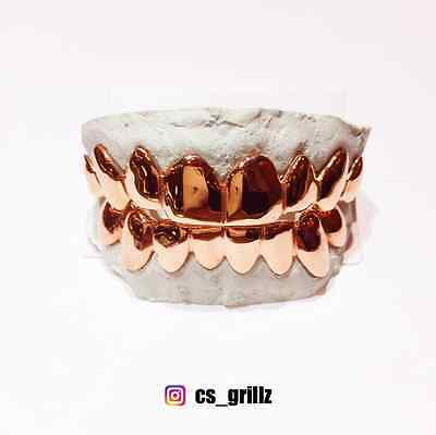10K Solid Rose Gold Custom Fit REAL Grill Gold Teeth GRILLZ.