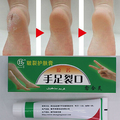 Cracked Heels Balm For Very Dry Rough Feet Hard Skin Cream Effective Anti Dry