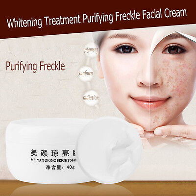 Professional Moisturize Whitening Treatment Purifying Freckle Facial Cream dyVP