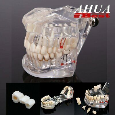 Dental Teaching Implant Model Pathology Active Teeth Restoration Bridge Caries