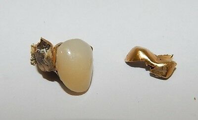 Solid Gold Dental Tooth Crown R15013