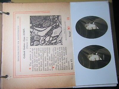 Rare 1909 Surgical Procedures Reall Photographs book on Thyroid glands Medical