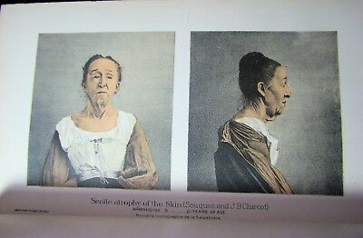 ~ Rare 1892 Antique Medical illustrated Book Set illustrations Color plates