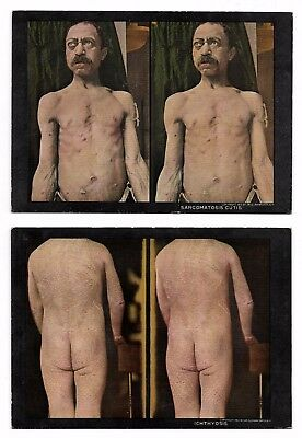 Antique 1910 MEDICAL ODDITIES Freak Skin Disease Deformities STEREOVIEW Cards